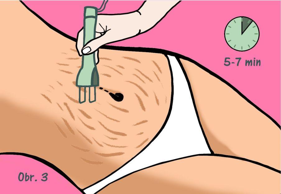 Ako sa zbaviť strií - žene aplikujú na brucho laserovú terapiu